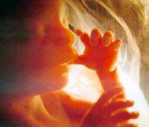 Técnica no invasiva para detectar enfermedades en fetos