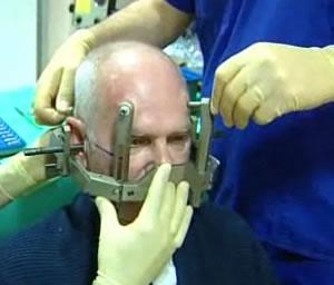 Electrodo en el cerebro contra el dolor de cabeza