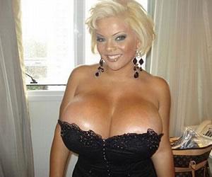 Modelo de los 'senos más grandes del mundo' intenta suicidarse porque perdió implantes