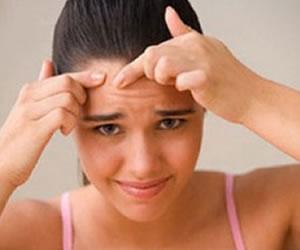 10 formas fáciles para deshacerse del acné