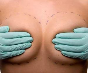 Protesis mamarias mitos y realidad