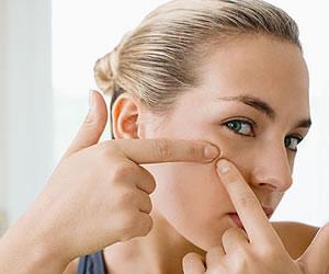 Mitos acerca del acné