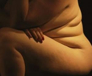 Sobrepeso en A.Latina creció cerca del 40 % entre 2002 y 2010