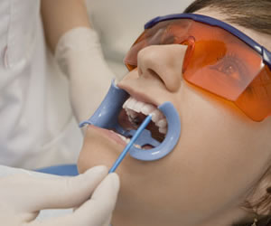 Blanqueamiento dental una alternativa de salud oral