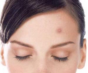 Campaña contra la discriminación por acné