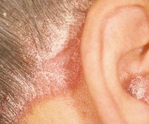 En el mundo 1 de cada 4 personas sufre de psoriasis