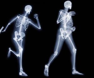 ¿Qué debes comer cuando sufres de osteoporosis?