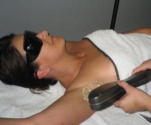 Consejos sobre la depilación lasér