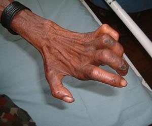 Entre 30 y 40 casos de lepra son diagnosticados por año en Bogotá