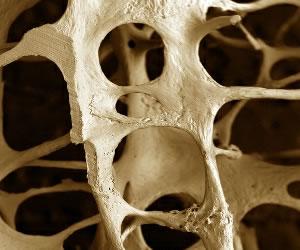 Científicos de la NASA desarrollan un análisis para detectar la osteoporosis