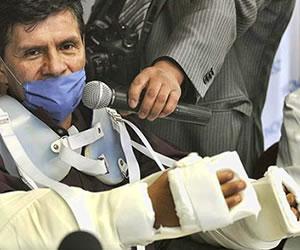 Exitoso el primer trasplante de brazos en Latinoamérica