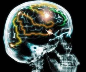 Científicos descubren defecto genético que protege el desarrollo del Alzheimer