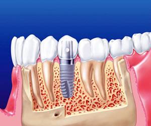 La necesidad de usar dientes artificiales, una dura realidad