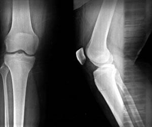 ¡Cuidado! La Osteoporosis no es cuento de viejos