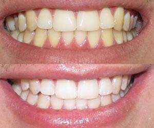 ¿Qué hacer con los dientes amarillos?
