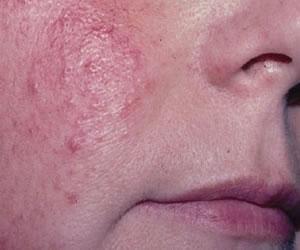 Cómo tratar la piel que sufre de enrojecimiento