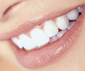 La importancia que tiene la sonrisa en nuestra salud