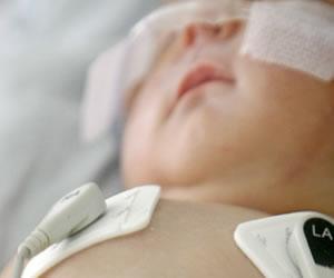 Muere bebé de 9 meses esperando cirugía de corazón