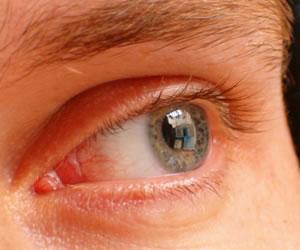 Hombres después de los 40 años deben cuidar su salud visual