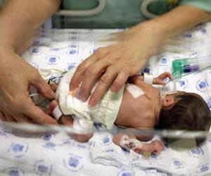 Hablemos de los mitos y realidades del bebé prematuro