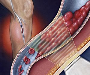Prevenga la trombosis derivado de cirugía de cadera y de rodilla
