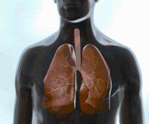 Avances en tratamiento de cáncer de pulmón, aumentan la supervivencia