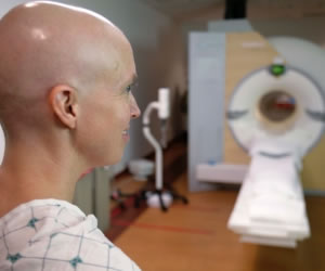 Nuevo medicamento puede mejorar el tratamiento del cáncer de linfoma