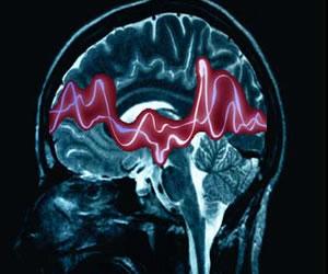 El 10% en Colombia puede padecer una crisis epiléptica: ACN