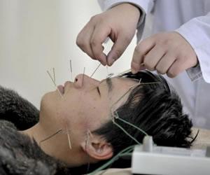 """Verdadera o falsa, la acupuntura alivia """"sofocos"""" de la quimioterapia"""