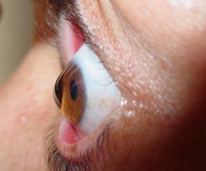 El Queratocono una enfermedad que termina en la pérdida de la visión