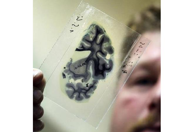 Un estudio descubre el proceso de la metástasis del cáncer en el cerebro