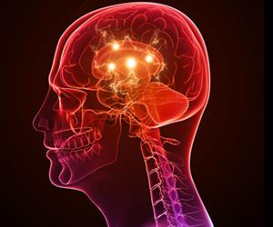 El Día Púrpura rompiendo el estigma acerca de la epilepsia