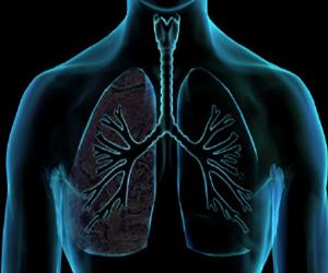 Un nuevo tratamiento para las personas con Efisema Pulmonar