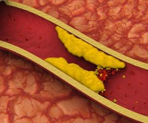 El aumento de colesterol en la sangre y la importancia del tratamiento