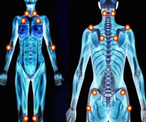 La Fibromialgia, una enfermedad silenciosa que deteriora la calidad de vida