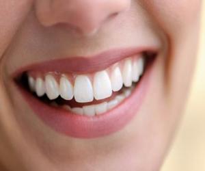 Sin cirugía, una nueva técnica de implantes dentales