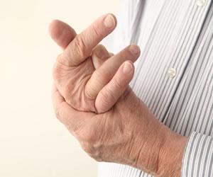 En el día mundial contra la artritis, no permitas que te deje sin fuerza