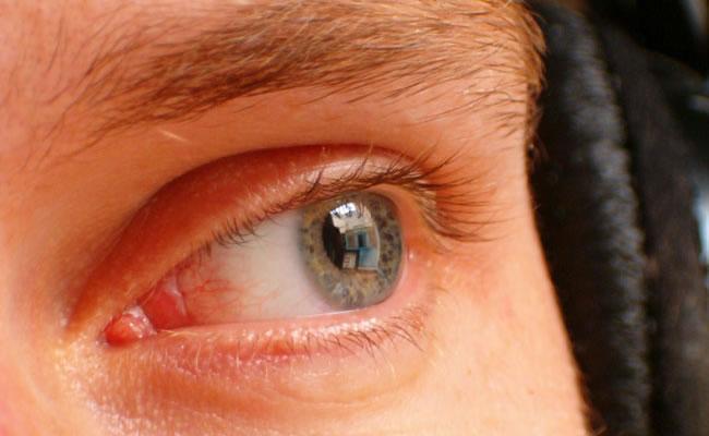 Tres consejos para aliviar los ojos rojos. Foto: EFE
