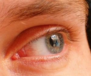 Tres consejos para aliviar los ojos rojos