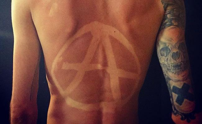 Dermatólogos alertan sobre el peligro de los tatuajes solares
