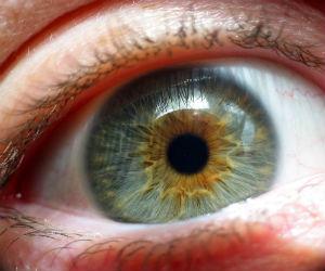 La cuarta parte de la población mundial sufre miopía