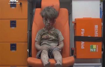 El niño de Alepo, símbolo del horror de la guerra