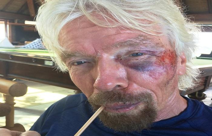 Richard Branson sufrió grave accidente