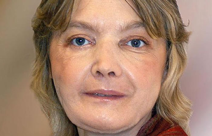 Murió la primera persona en ser sometida a un trasplante de cara