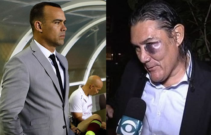 Rafael Dudamel golpeó e hirió a un asistente colombiano
