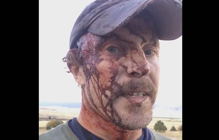 Hombre sobrevive a dos ataques de oso. Foto:Facebook