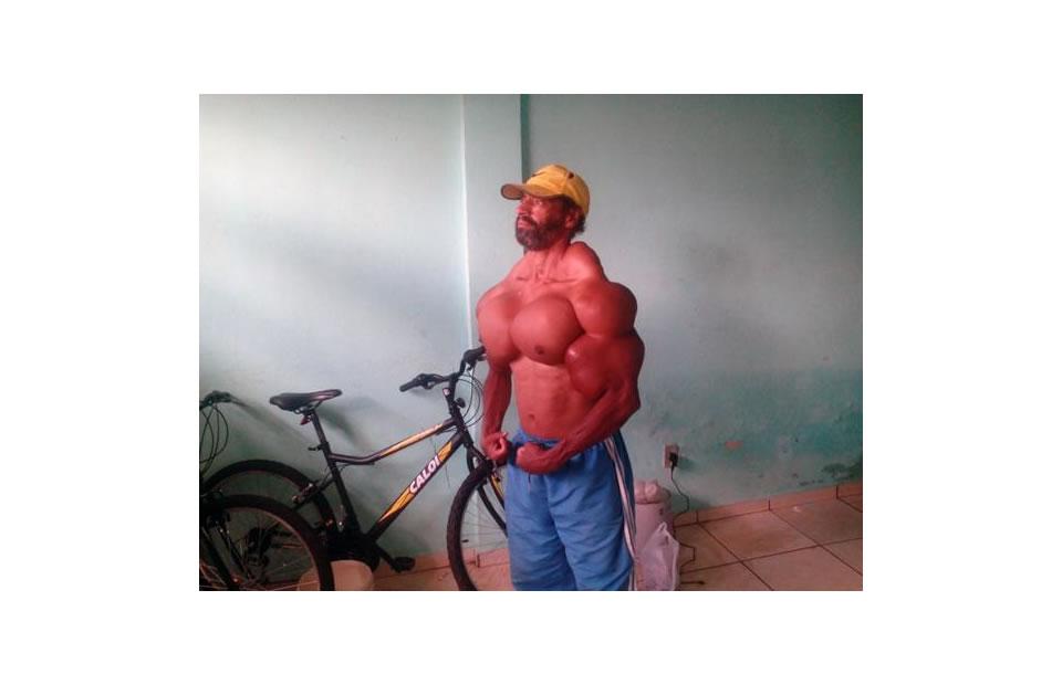 Este hombre se inyecta aceite para parecerse a Hulk
