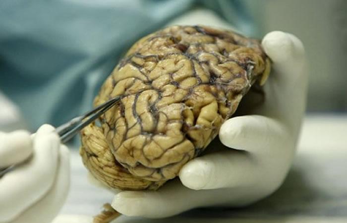Científicos logran prevenir Alzheimer con un gen inyectado en el cerebro