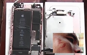 Apple: iPhone 7 explota en la cara de un hombre