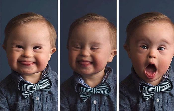Bebé es rechazado como modelo por tener síndrome de Down